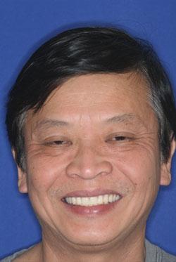after-dentures